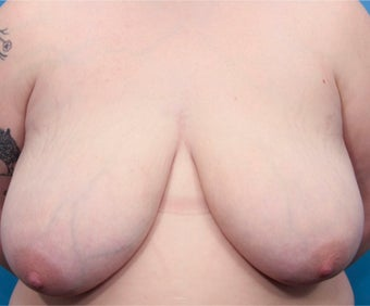 20 year old woman treated with Breast Reduction before 3031273