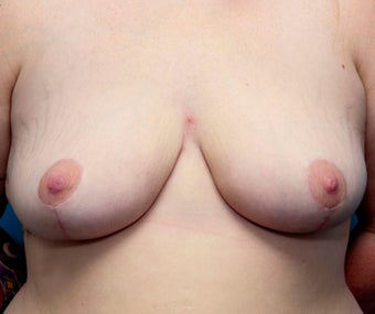 20 year old woman treated with Breast Reduction after 3031273