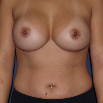 25-34 year old woman treated with Breast Augmentation after 3439569