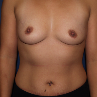 25-34 year old woman treated with Breast Augmentation before 3439569