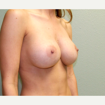 35-44 year old woman treated with Breast Augmentation after 3191800