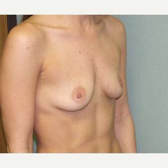 35-44 year old woman treated with Breast Augmentation before 3191800