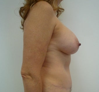55-64 year old woman treated with Mommy Makeover after 1650238