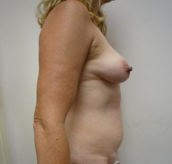 55-64 year old woman treated with Mommy Makeover before 1650238
