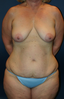 45-54 year old woman treated with Mommy Makeover before 1679204