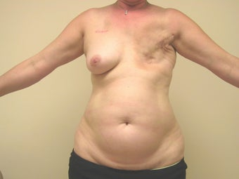 Breast Reconstruction after mastectomy before 1103470