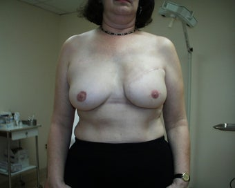 Breast Reconstruction after mastectomy after 1103470