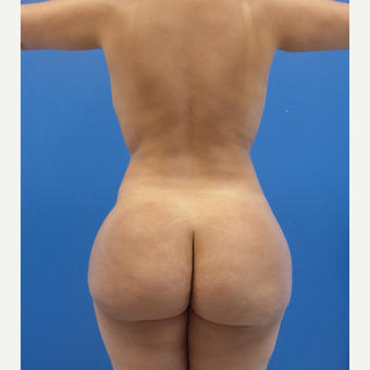33 y.o. female – Lipo of abdomen, flanks, and back with fat transfer to buttocks  – 1450cc per side after 3005916