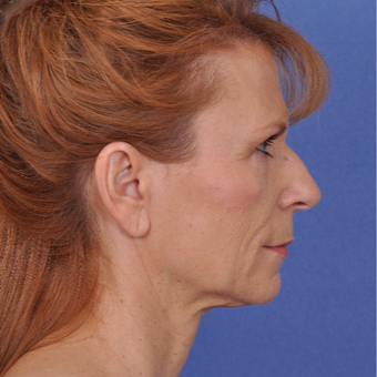 55-64 year old woman treated with Facelift before 3466522