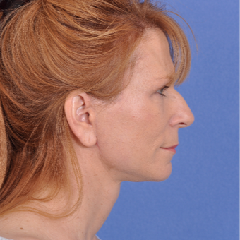 55-64 year old woman treated with Facelift after 3466522