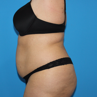 35-44 year old woman treated with Smart Lipo before 3332892