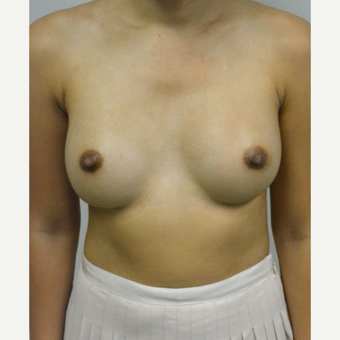 35-44 year old woman treated with Breast Augmentation after 3005046