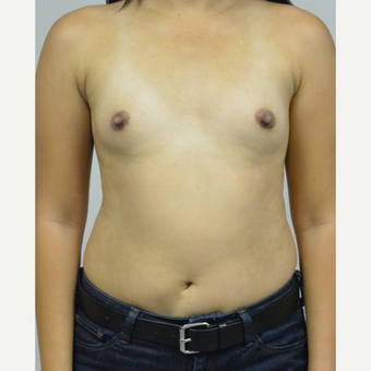 35-44 year old woman treated with Breast Augmentation before 3005046