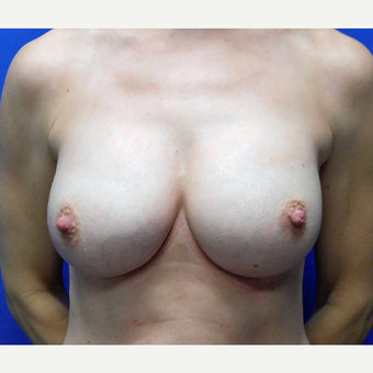 25-34 year old woman treated with Breast Implant Revision after 3832051