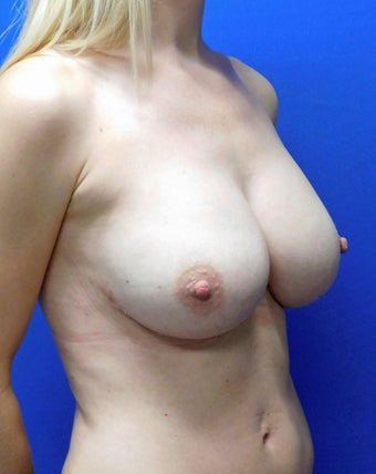 25-34 year old woman treated with Breast Implant Revision 3832051