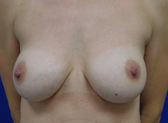 25-34 year old woman treated with Breast Implant Revision before 3832051