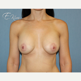 25-34 year old woman treated with Breast Lift with Implants after 3663423