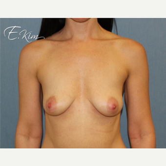25-34 year old woman treated with Breast Lift with Implants before 3663423