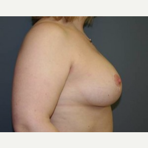 25-34 year old woman treated with Breast Lift after 3339552