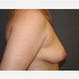 25-34 year old woman treated with Breast Lift before 3339552