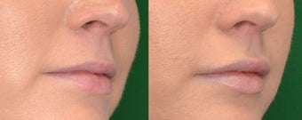 Restylane Filler in Lips before 1306454