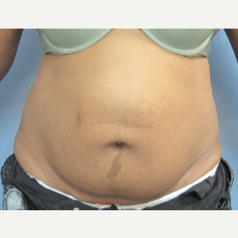 35-44 year old woman treated with Tummy Tuck before 3459640