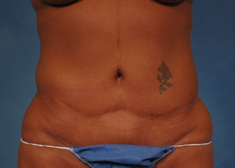 53 year old Female who underwent Tummy Tuck Revision to improve appearance of prior surgery