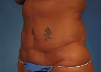53 year old Female who underwent Tummy Tuck Revision to improve appearance of prior surgery 1194112