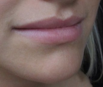 18-24 year old woman treated with Lip Augmentation before 2847445