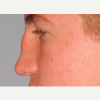 18-24 year old man treated with Revision Rhinoplasty before 3703101