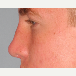 18-24 year old man treated with Revision Rhinoplasty after 3703101
