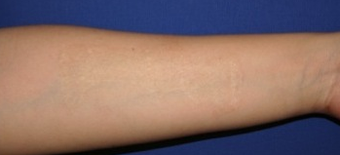 "Self-harm scars. Before and after ""dermabrasion and thin skin grafting"".  after 1359014"