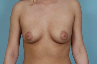 Breast Augmentation before 1448939