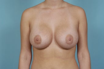 Breast Augmentation after 1448939