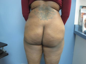 36 year old woman treated with Brazilian Butt Lift before 2672052