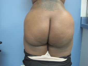 36 year old woman treated with Brazilian Butt Lift after 2672052
