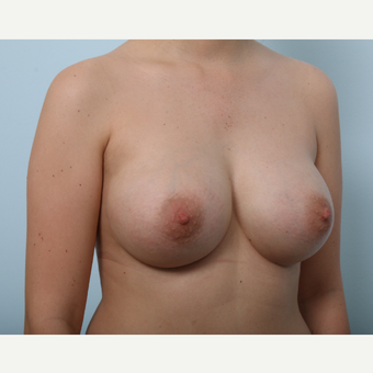 Breast Augmentation after 3425422