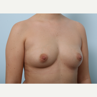 Breast Augmentation before 3425422