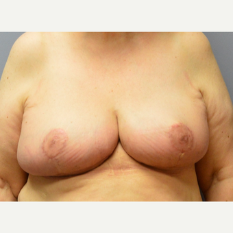 55-64 year old woman treated with Breast Reduction after 3369986