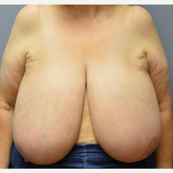55-64 year old woman treated with Breast Reduction before 3369986