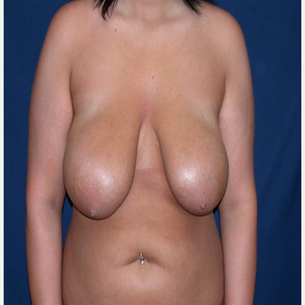 18 year old young woman with low self esteem and large droopy breasts before 3299322