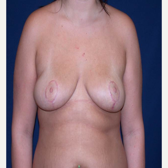 18 year old young woman with low self esteem and large droopy breasts after 3299322
