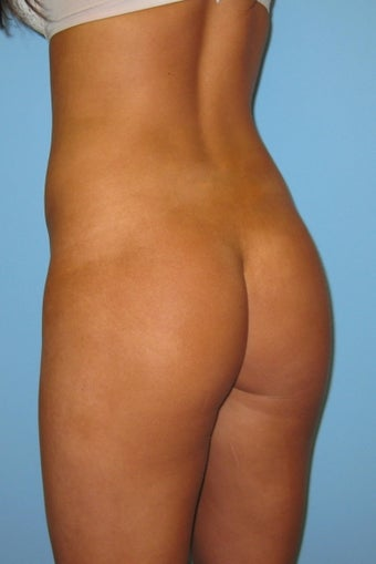 Gluteal implants and liposuction