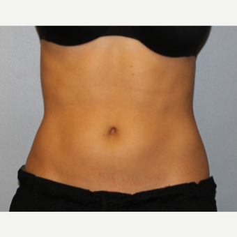 Fit Mid 20's woman treated with CoolSculpting to flanks after 1672896