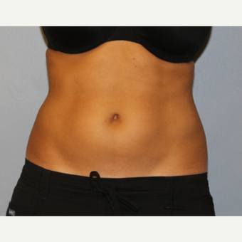 Fit Mid 20's woman treated with CoolSculpting to flanks before 1672896