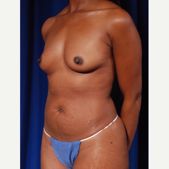 35-44 year old woman treated with Breast Fat Transfer and breast implants before 2854600