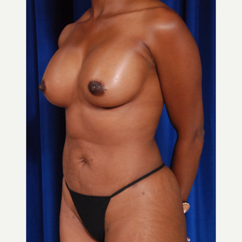 35-44 year old woman treated with Breast Fat Transfer and breast implants after 2854600