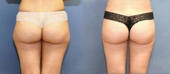 Liposuction of the saddlebags and inner thighs.