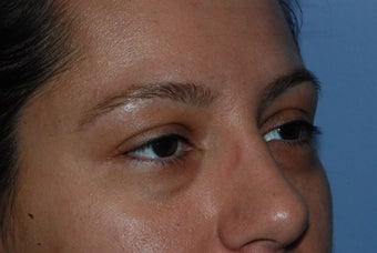Blepharoplasty and fat grafting before 405393