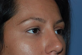 Blepharoplasty and fat grafting after 405393